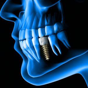 implanty_przytobie