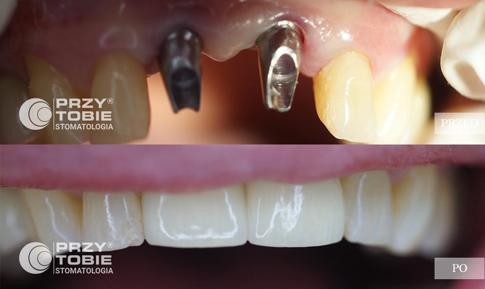 zdjęcia jamy ustnej pacjenta przytobie