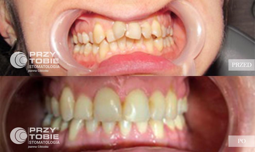 ortodoncja przy tobie